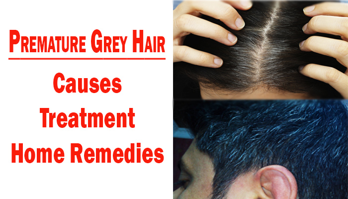 Premature Grey Hair : Causes, Treatment and Home remedies
